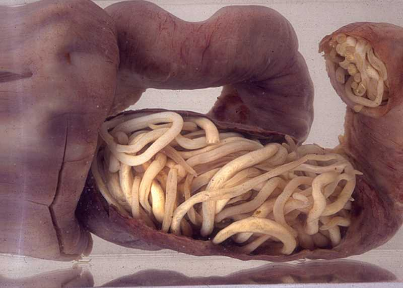 Nutritionintestine300dpi.jpg